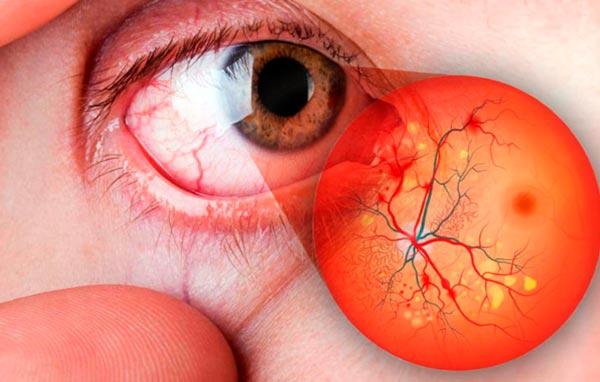 Preguntas frecuentes sobre la retinopatía diabética